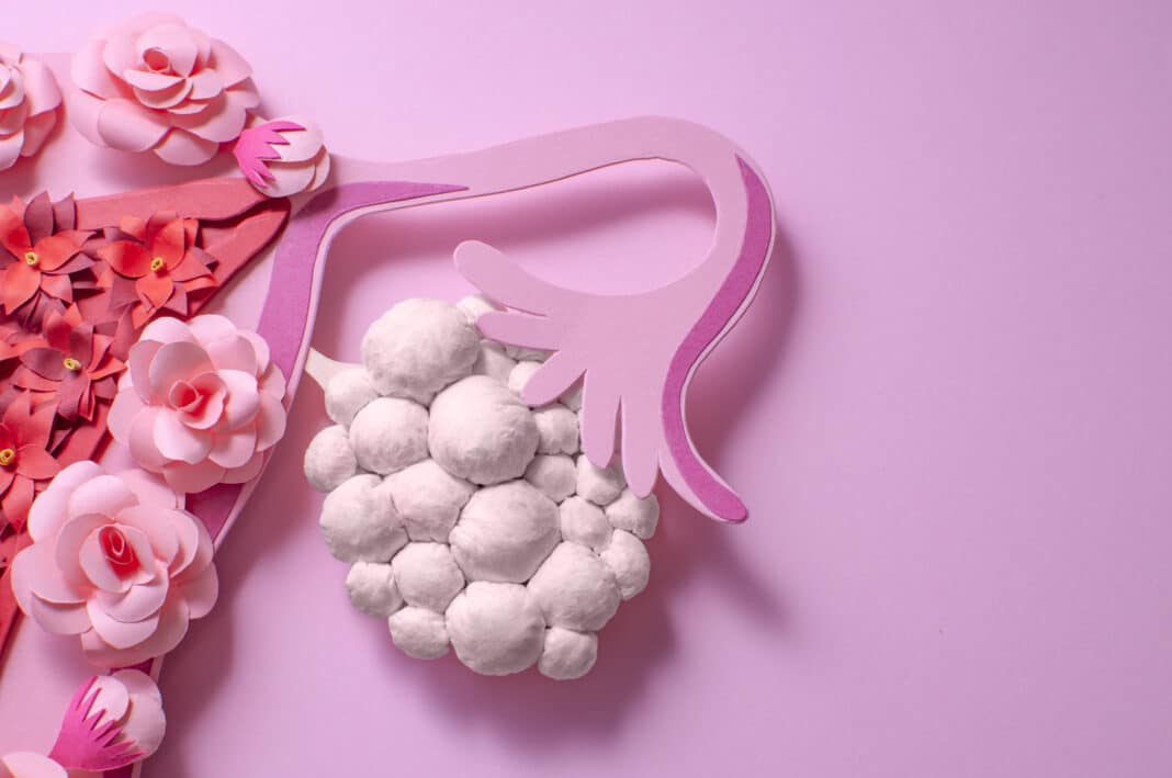 Comment soigner le syndrome des ovaires polykystiques ?