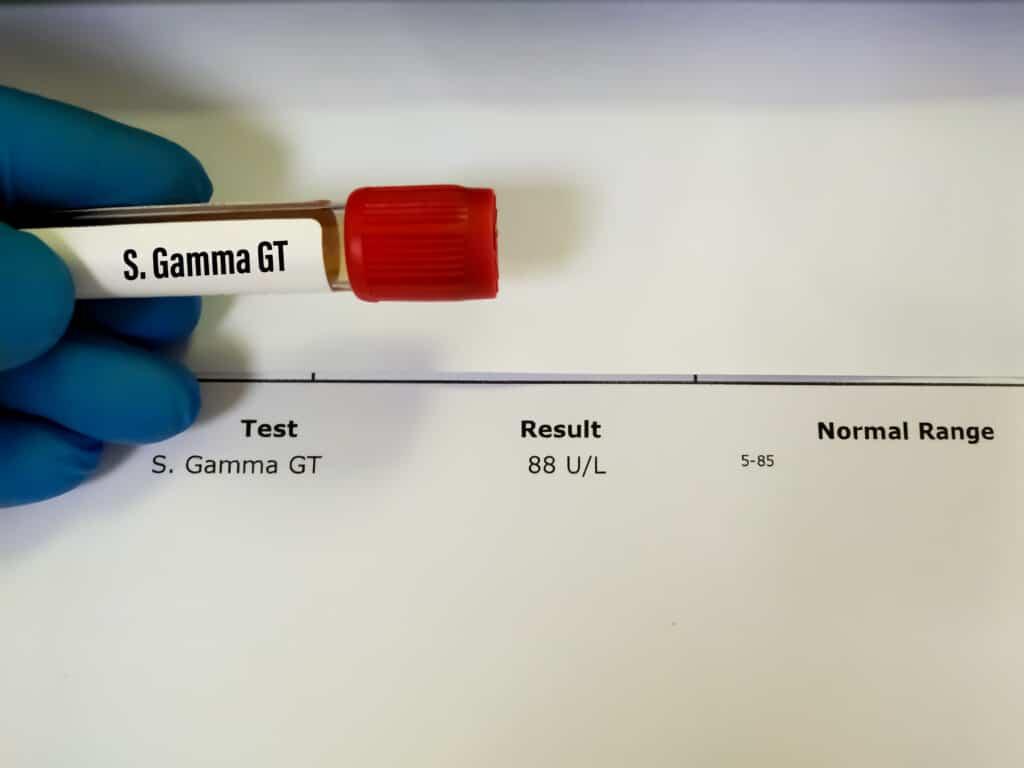 Quelles sont les causes d'un taux de gamma GT trop élevé ?