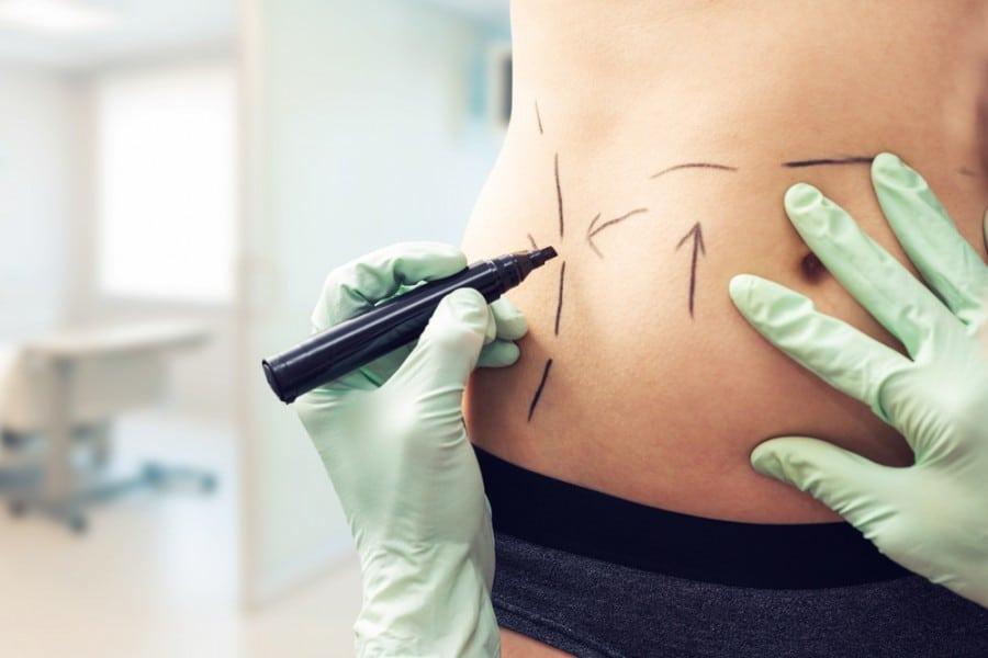 Pourquoi choisir la chirurgie esthétique ?