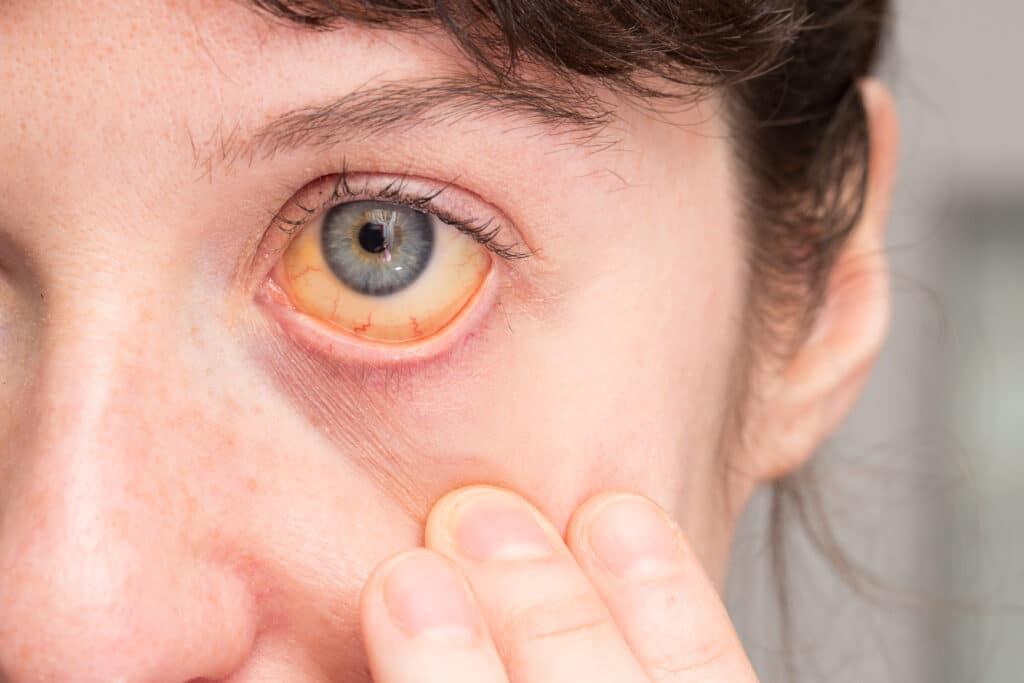 Quels sont les symptômes d'une cirrhose du foie?